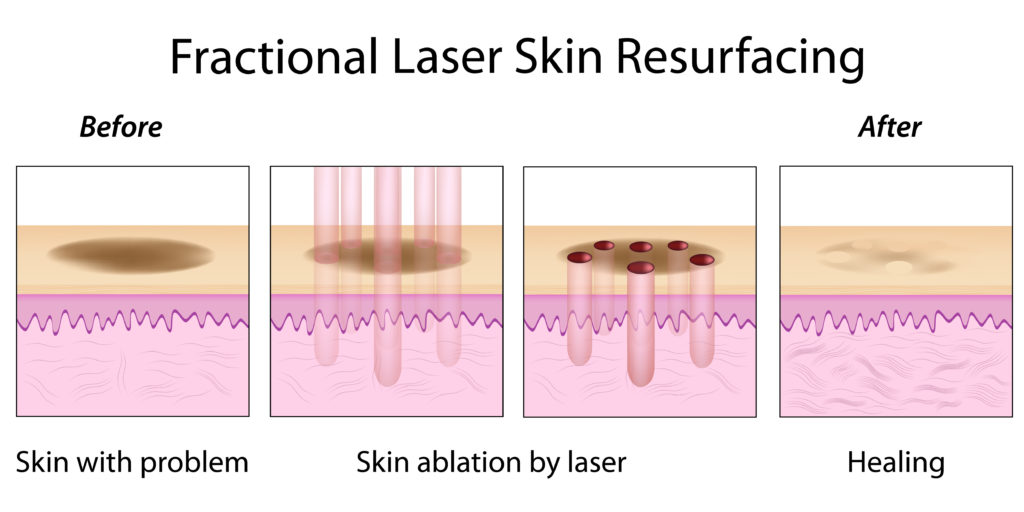 RESURFX™ TREATMENTS - Facial Plastic Surgery