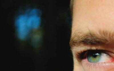 Top Eyelid Drooping